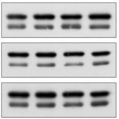Custom service : Antibody validation in WB